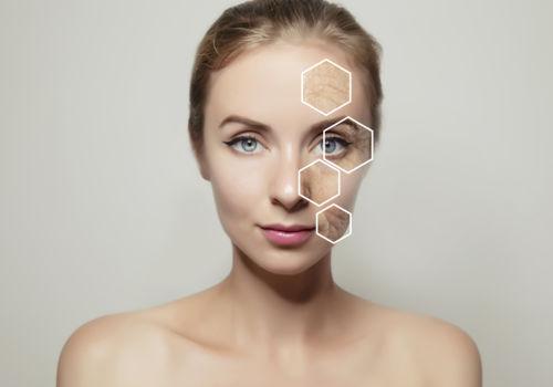 Diagnostic peau